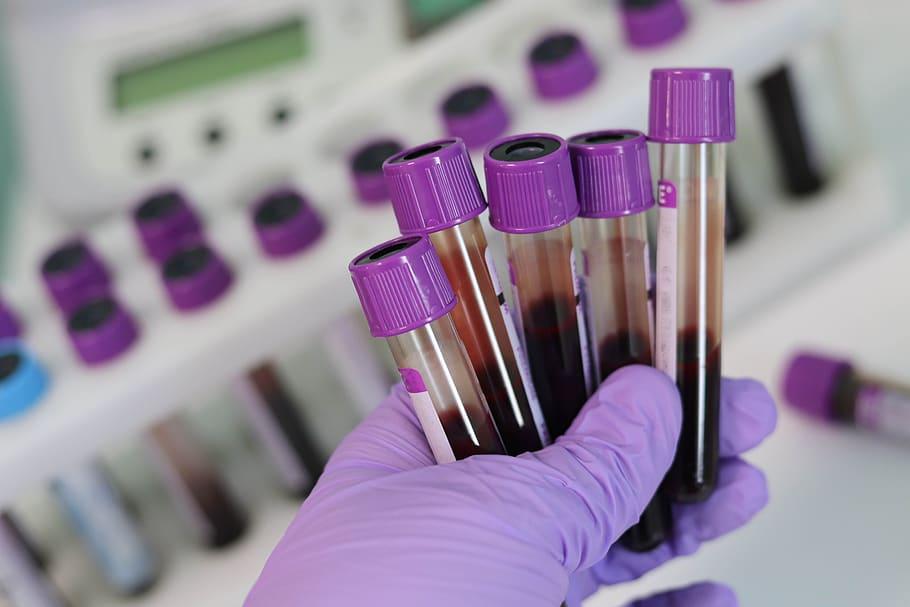 Name: laboratory-medical-medicine-hand.jpg Views: 18 Size: 43.1 KB